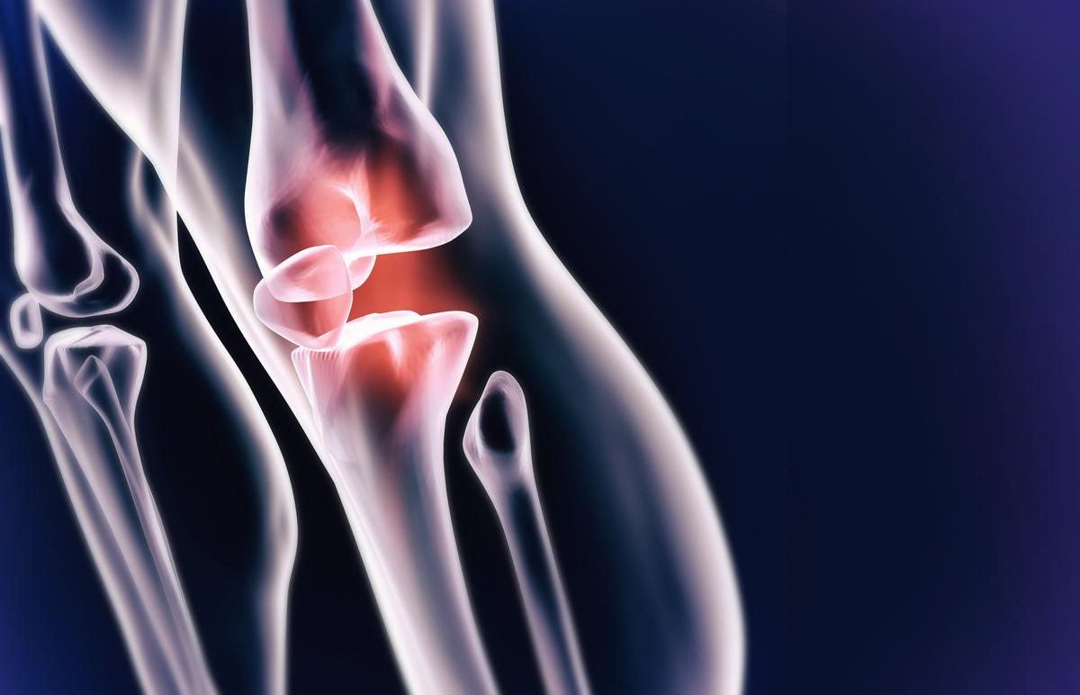 Can Stem Cells Regenerate Cartilage?